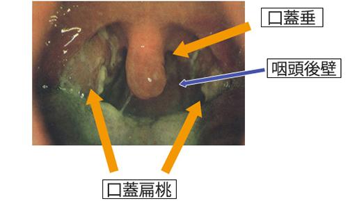 コロナ ウィルス 扁桃 腺